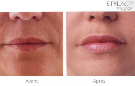 stylage-special-lips-avant-apres