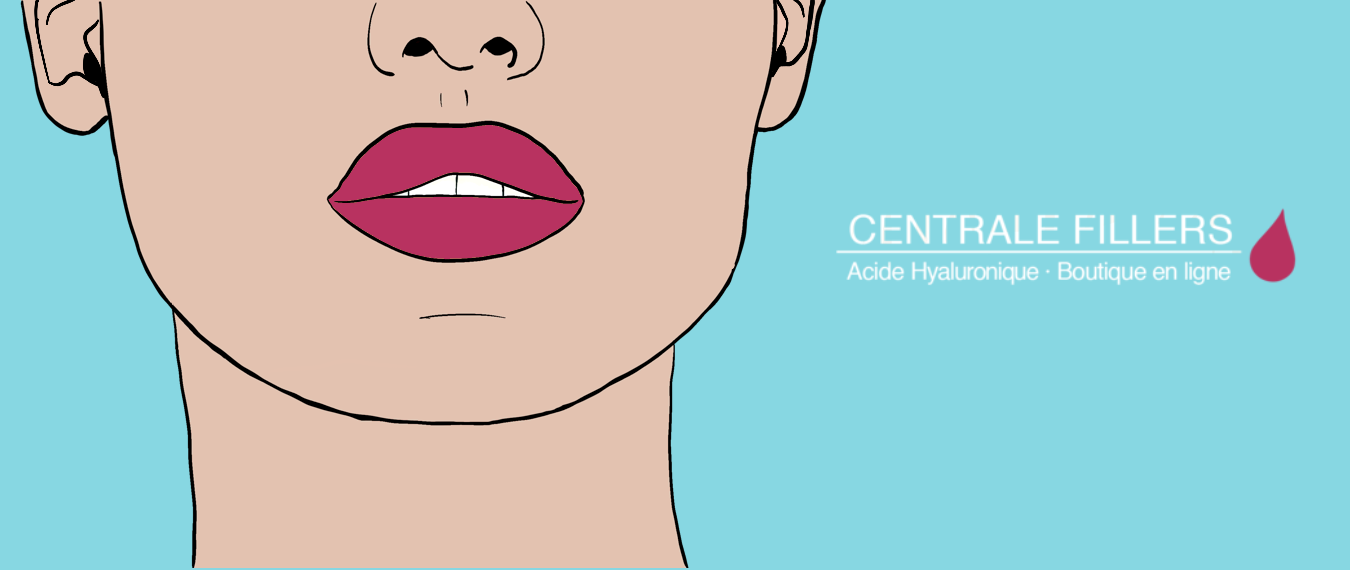 centrale-fillers